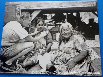 医師の診察を受けるマーシャル諸島の人
